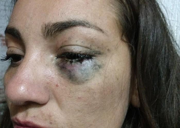 Mulher agredida (Crédito: Arquivo Pessoal)