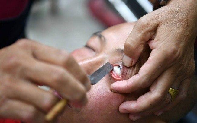 Procedimento envolve 'depilação' no olho (Crédito: China Plus News )
