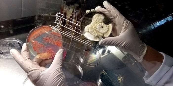 Amostras de roupas íntimas foram analisadas em pesquisa de Campinas, que constatou contaminação por fungos e bactérias