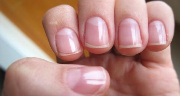 Por que raios temos aquelas manchas brancas na base das unhas?