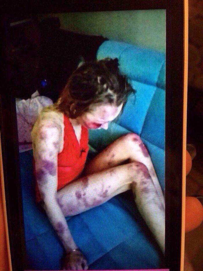 O agressor enviou essa imagem para os amigos após agredir a mulher