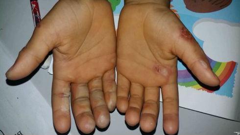 Criança teve os dedos queimados pela própria mãe em Codó (Crédito: TV Mirante)