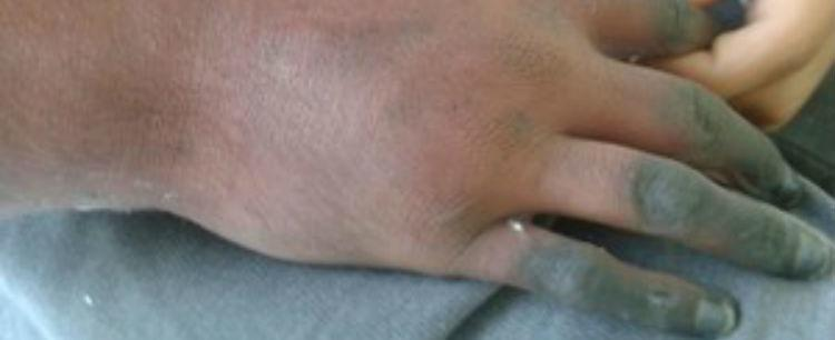 Jovem perde o braço após aplicação errada de injeções em SP