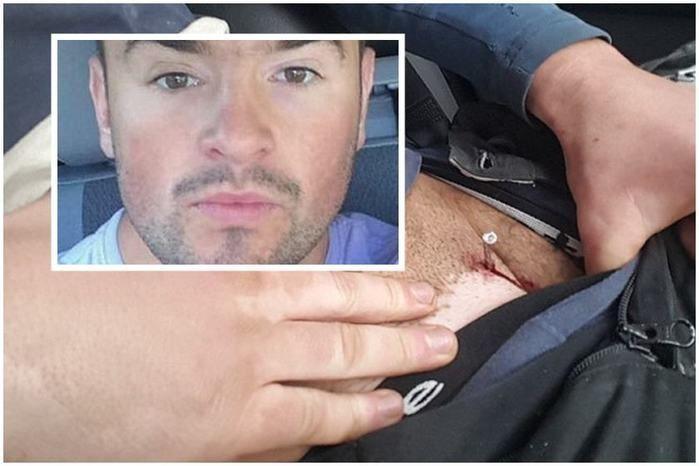 Após acidente de trabalho, homem acaba com prego preso no pênis