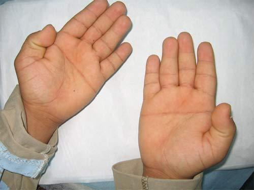 Mão de um portador de síndrome de  Down (Crédito: Reprodução)