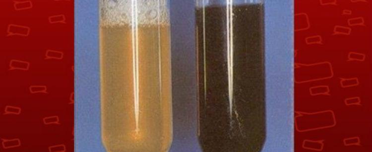 Intoxicação por peixe é causa da doença da urina preta, diz estudo