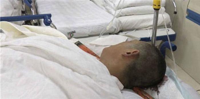 Homem sobrevive após haste de ferro de 1,5m atravessar sua cabeça