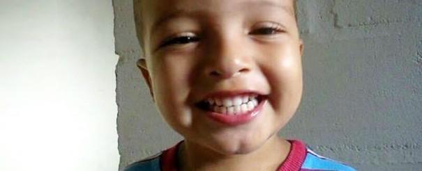 Garoto morre após ser atacado por Pitbull da família