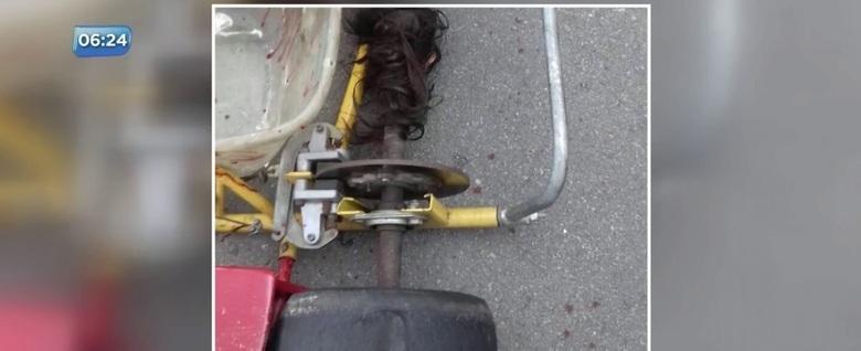 Cabelo de menina fica preso em motor e couro cabeludo é arrancado