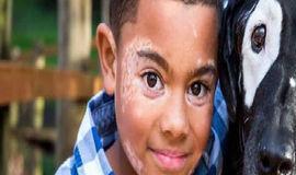Menino com vitiligo ganha amigo com o mesmo problema e emociona