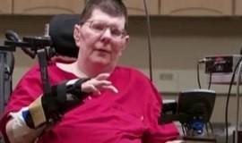 Tecnologia ajuda homem mexer o braço com a força do pensamento