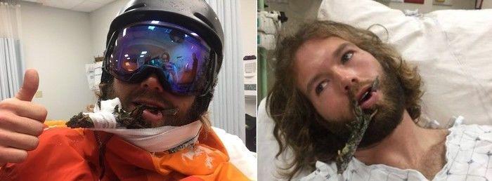 Instrutor sofre acidente e acaba com graveto cravado na boca