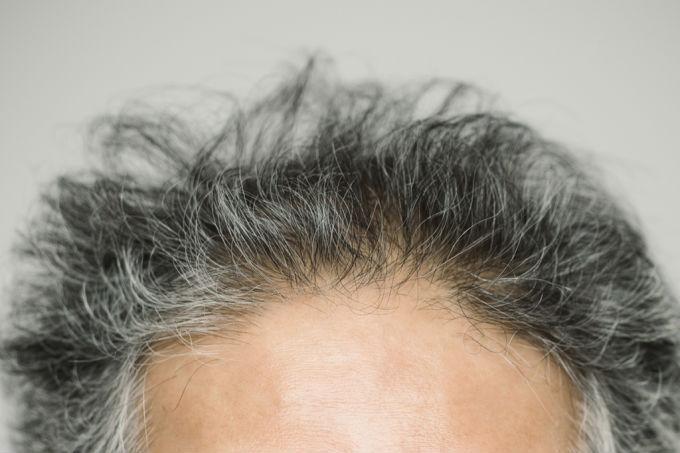 Cabelos grisalhos podem ser indícios de problemas cardiovasculares   (Crédito: Reprodução)