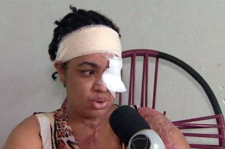 Mulher é atacada com ácido pela suposta amante do marido