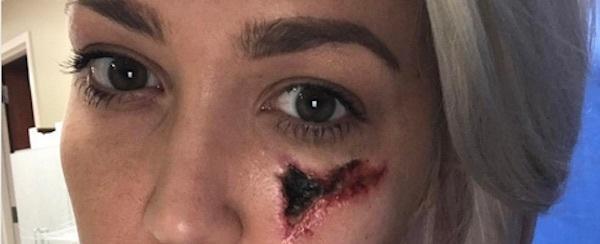 Cantora mostra como ficou seu rosto após ser picada por uma aranha
