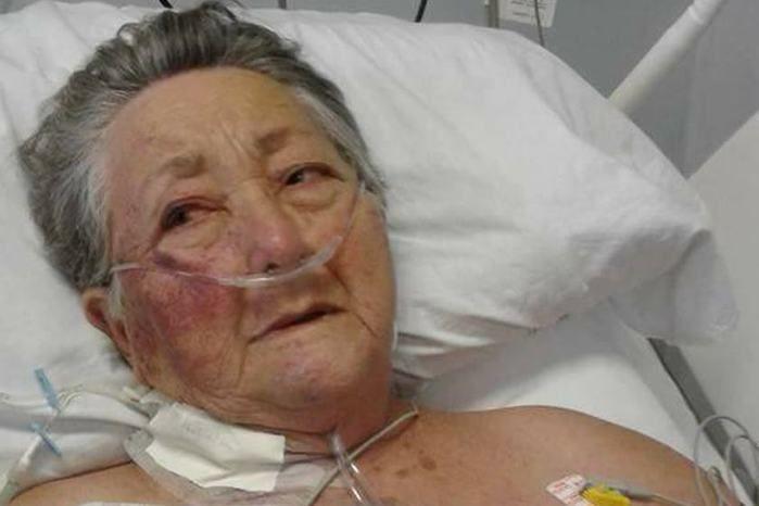 Idosa é espancada por enfermeiro em UTI de hospital em São Paulo