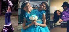 Gêmeas siamesas de 16 anos não querem se separar