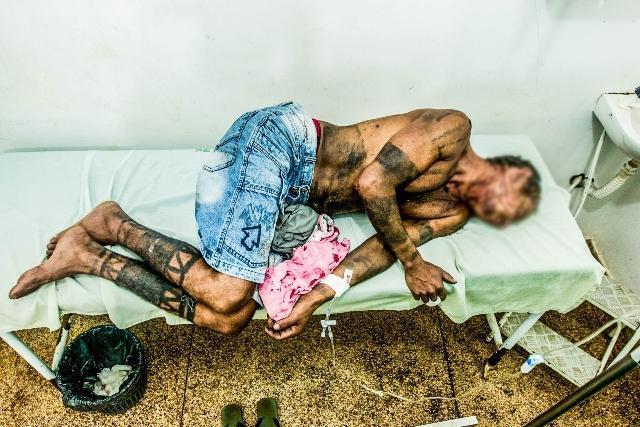 Um dos índios feridos no ataque (Crédito: Ana Mendes/Cimi)