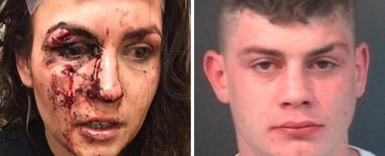 Mulher fica ferida após impedir que jovem agredisse a namorada