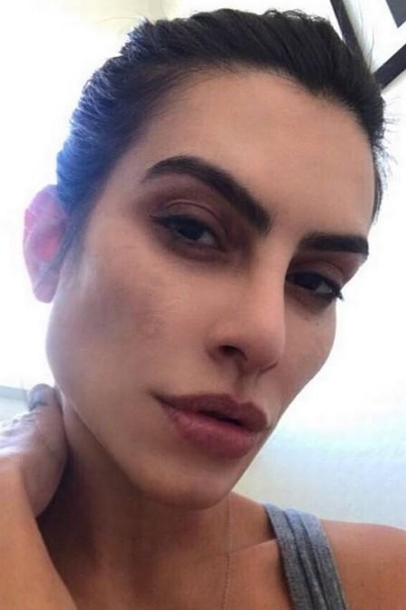Cléo Pires posa sem make em rede social e fala sobre doença de pele