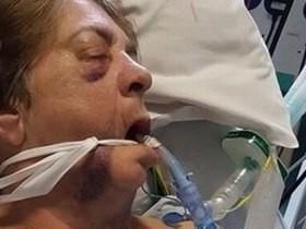 Tentativa de assalto violenta deixa idosa em coma no Reino Unido