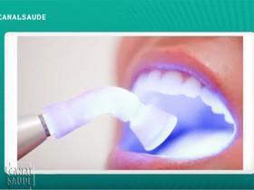 Clareamento dental prejudica os dentes? Veja no Canal Saúde!