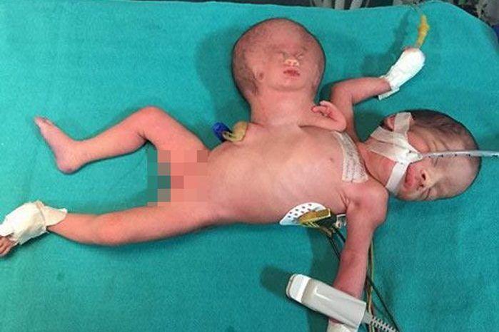 Bebê nasce com cabeça de irmão presa ao corpo e passa por cirurgia (Crédito: Reprodução)