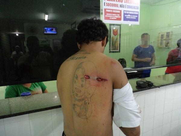 Jovem é baleado de raspão na garupa de uma moto em Parnaíba