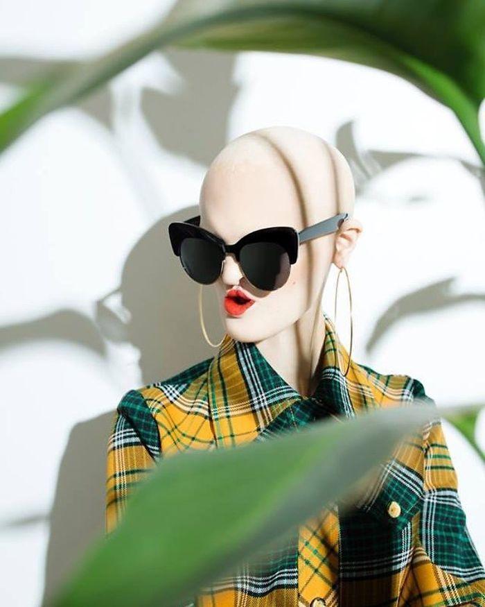 Modelo com síndrome rara faz sucesso no mundo da moda