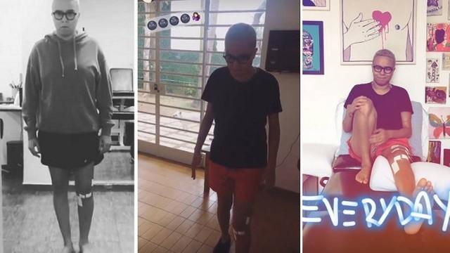 Maria Gadu passa por cirurgia no joelho e tem dificuldade ao andar