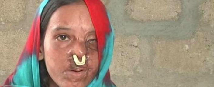 Jovem recusa casamento e tem rosto desfigurado com ataque de ácido