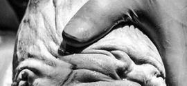 """Foto da cabeça de bebê """"deformada"""" durante o parto choca a internet"""