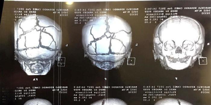 Casal é preso acusado de agredir e fraturar crânio de bebê