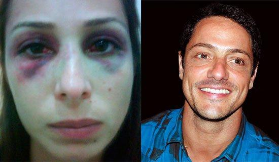 Christiano Rangel agrediu ex-namorada