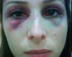Ex de Luana Piovani é condenado a prisão domiciliar por agressão