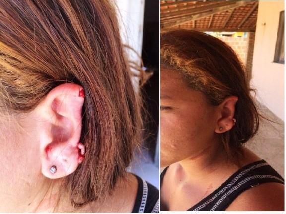 Vítima teve a orelha decepada (Crédito: Reprodução)