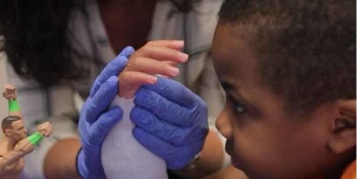 Após 2 anos, criança reage a transplante de mãos com sucesso