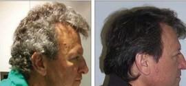 Nova droga usada em quimioterapia pode dar cor ao cabelo grisalho