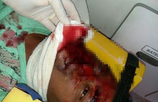 Homem tem o rosto desfigurado após colidir moto em muro