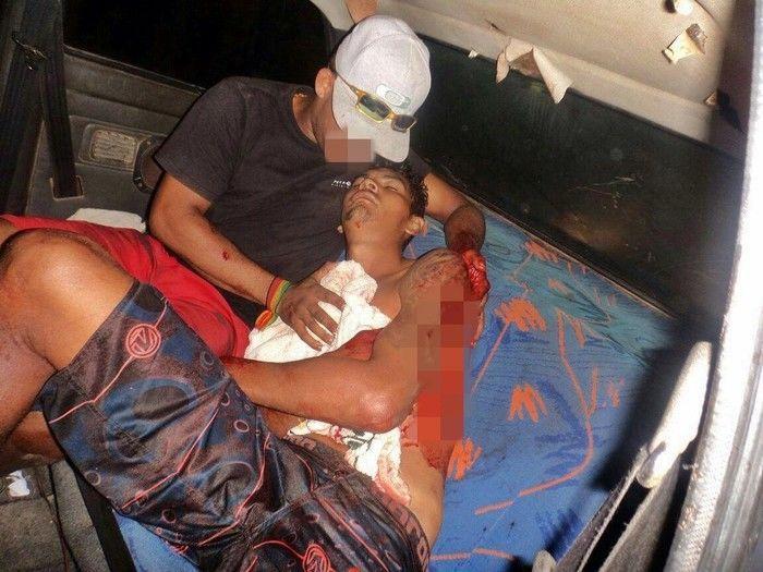 """""""Zezinho"""" foi esfaqueado após atirar em Renaldo. Ele foi socorrido em um carro particular.  (Crédito: Yuri Gomes / Rádio Cidade)"""