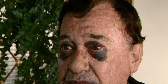 Taxista de 73 anos fica ferido após ser espancado durante assalto