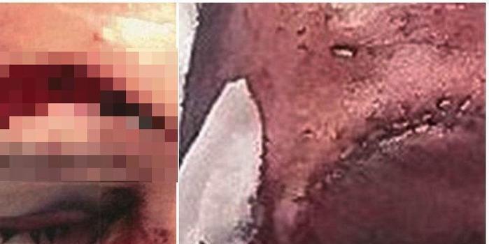 Mulher é condenada por agredir dois homens com garrafa de vinho