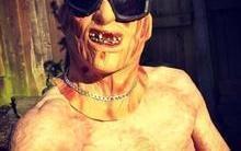 Jovem com 80% do corpo queimado usa fantasia de Freddy Krueger