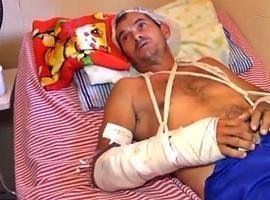 Homem tem os braços quebrados durante assalto em Parnaíba