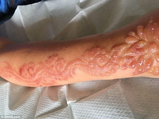 Tatuagem de henna gera cicatrizes permanentes em menina de 7 anos