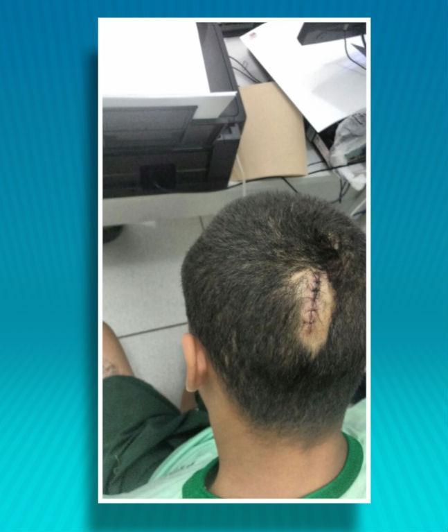 Adolescentes foram agredidos (Crédito: Reprodução)