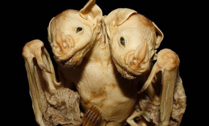 Os gêmeos siameses têm duas cabeças, mas apenas um corpo (Crédito: Reprodução)