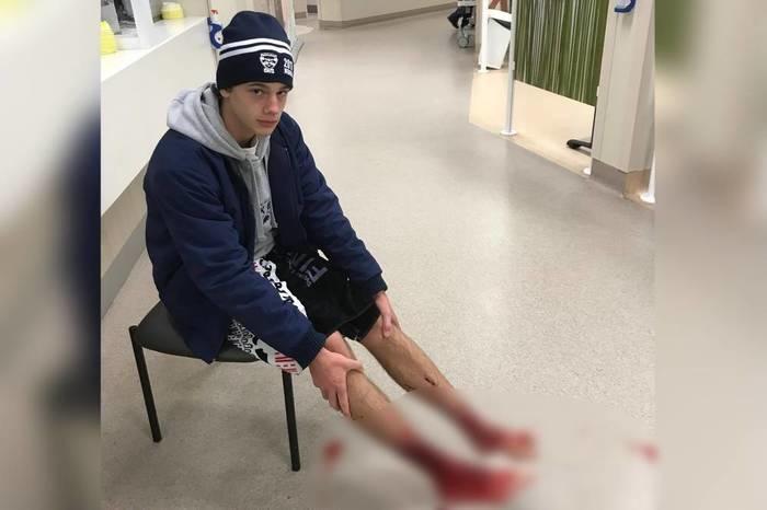 o adolescente com os pés feridos à espera de atendimento médico no hospital (Crédito: Reprodução)