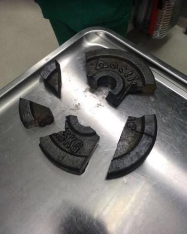 Pênis ficou entalado no centro de uma anilha de metal (Crédito: Reprodução)