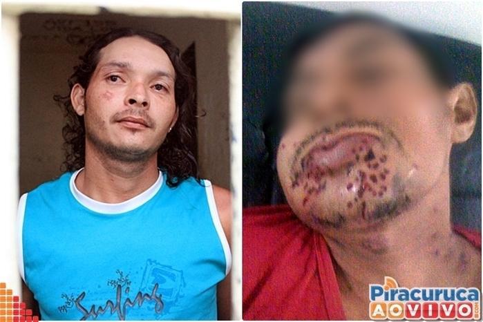 Homem é preso após tenta matar o próprio tio em Piracuruca (Crédito: Reprodução/PM)